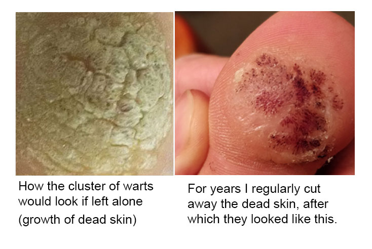 Verrucas before and after removing dead skin