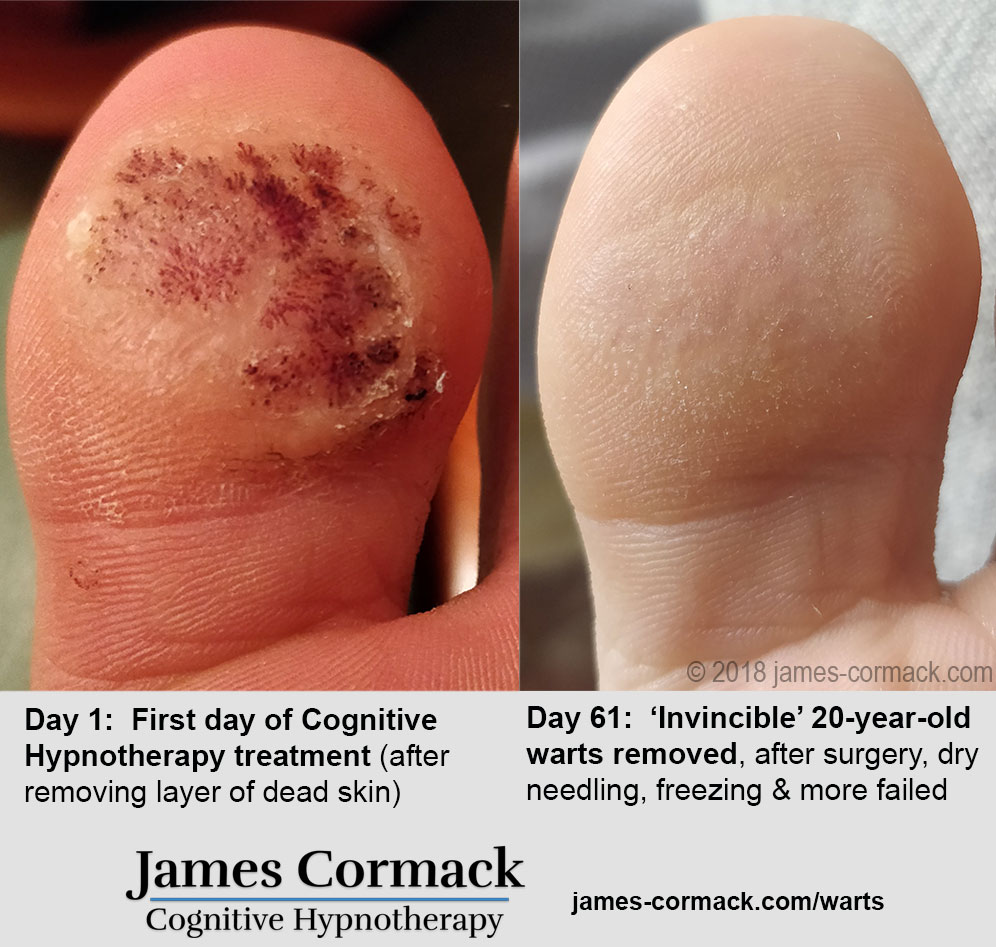 Warts removed by hypnotherapy, before and after photos