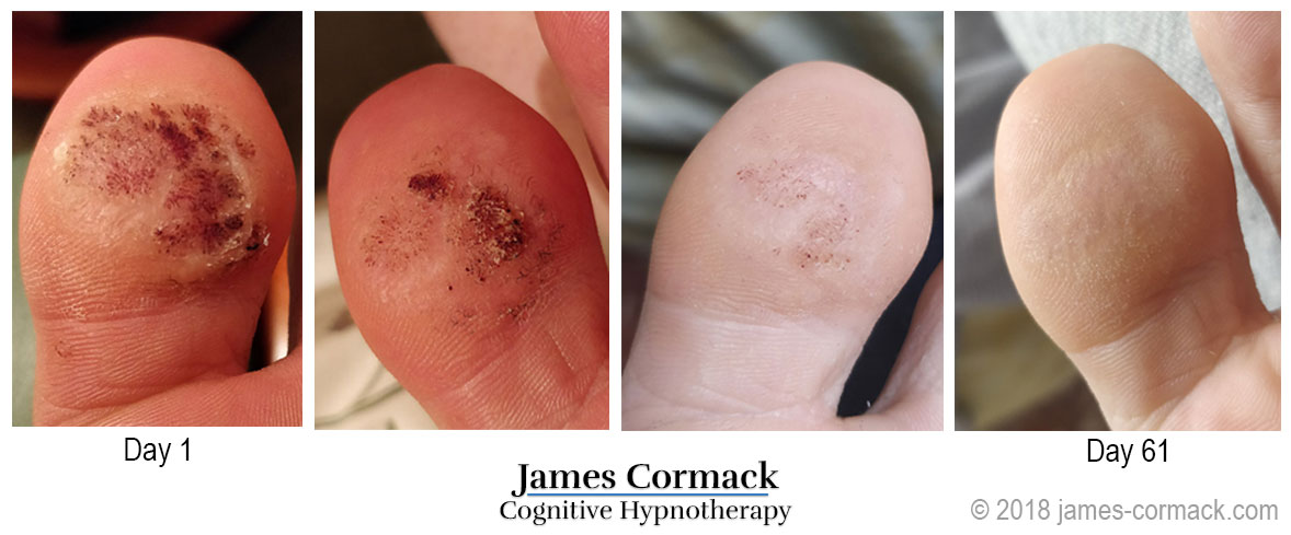 My Invincible Warts Finally Disappeared After Cognitive Hypnotherapy When Nothing Else Worked James Cormack Com
